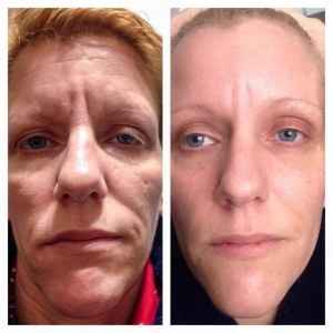 Luminesce before and after