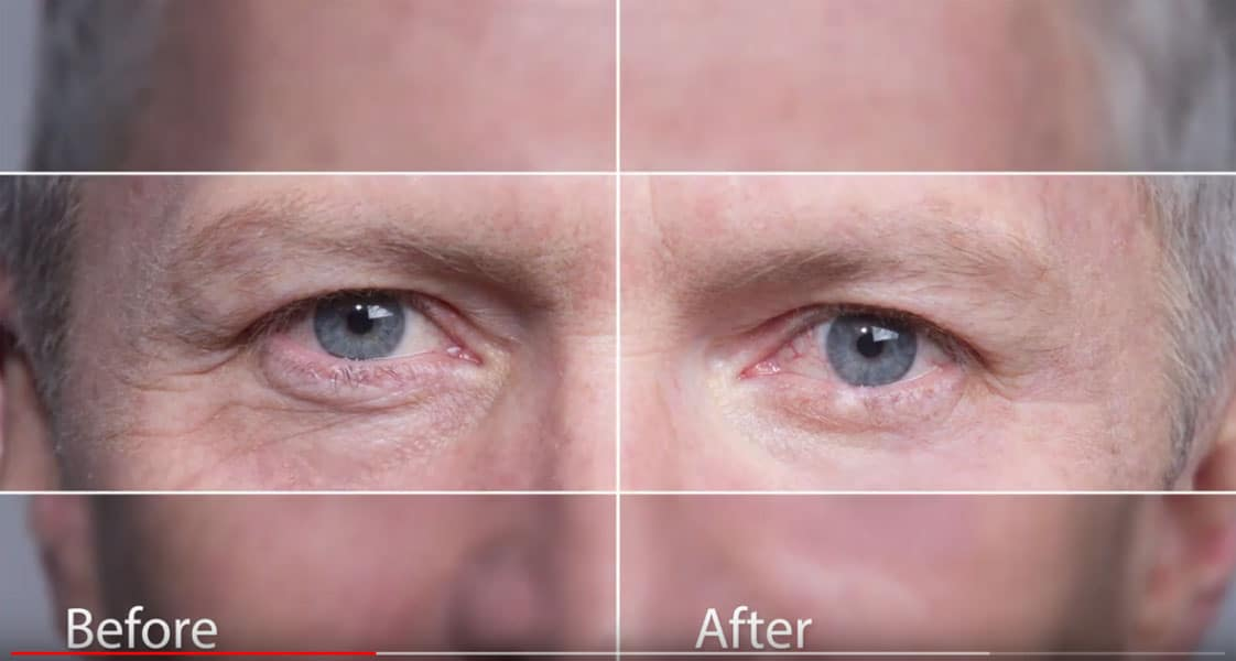 Instantly Ageless Before and After Photos