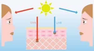 UV Light Ages Skin Jeunesse Luminesce
